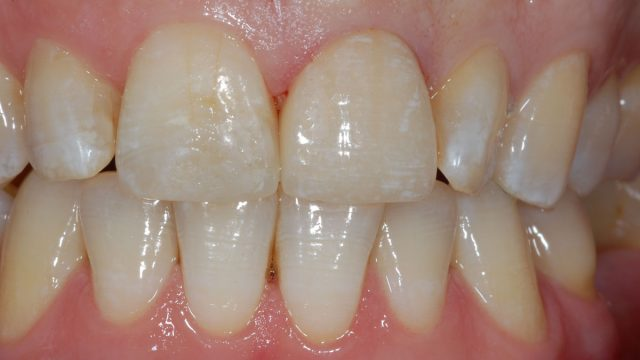 Aesthetic crown and fillings