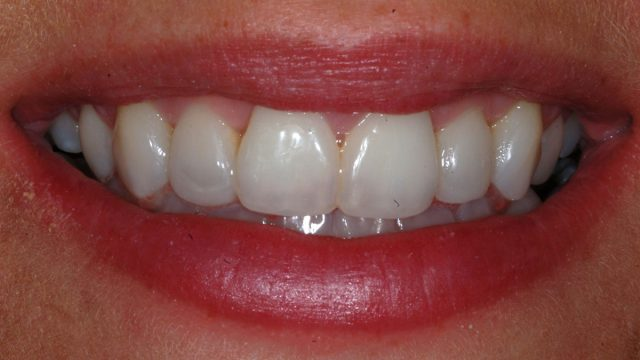 Orthodontics and whitening, direct composites