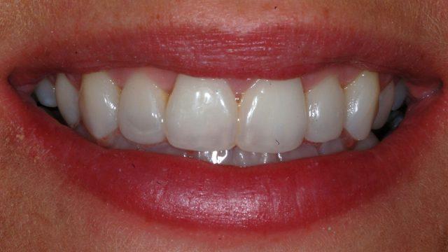 Orthodontics and whitening, direct composites