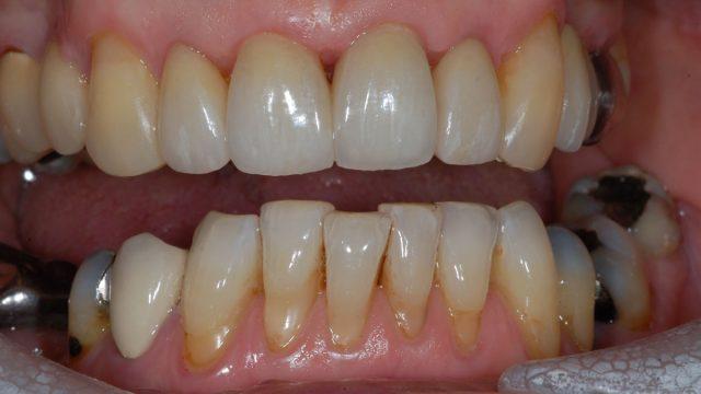Aesthetic gum surgery