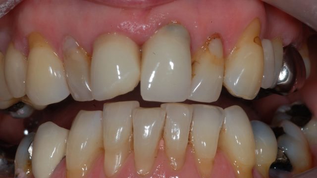 Chipped crowns, discoloured fillings, uneven teeth, uneven gumline