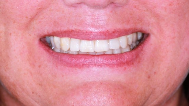 Powerprox 6 Months Braces and Dental Implants
