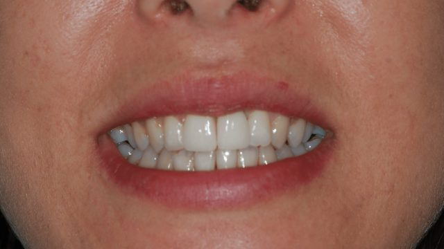 Loss of front tooth implant case
