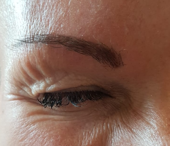 Heavy Eyelids Drooping Eyebrows Carriage Works Dental
